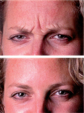 Botox® for facial wrinkles serving Stoney Creek, Hamilton