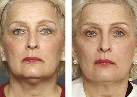 Thermage performed with facial threadlift to provide longevity