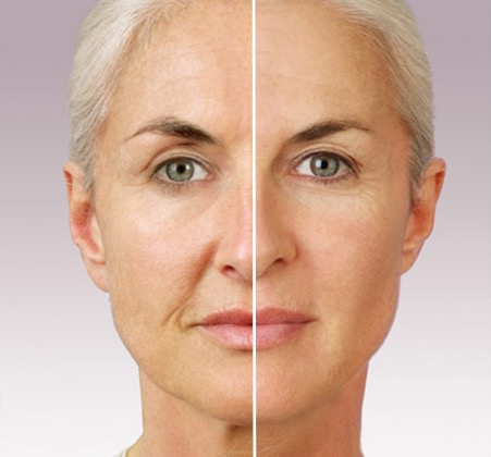 Restylane & Juvederm Volume Replacement: Stoney Creek